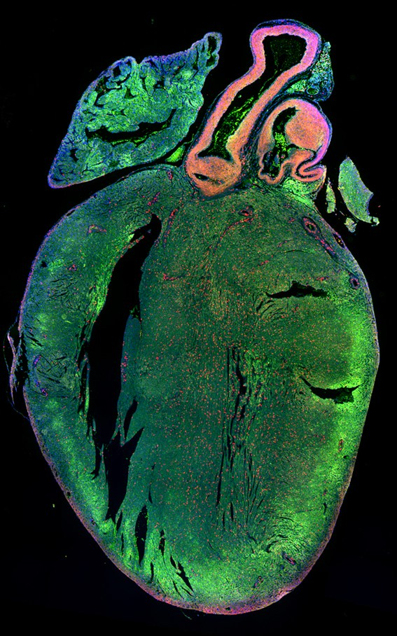 Neonatal mouse heart treated for 7 days with a novel miRNA, identified by high throughput screening using a whole genome miRNA library, enhancing cardiomyocyte proliferation. Green: cardiomyoctes. Red: proliferating cells