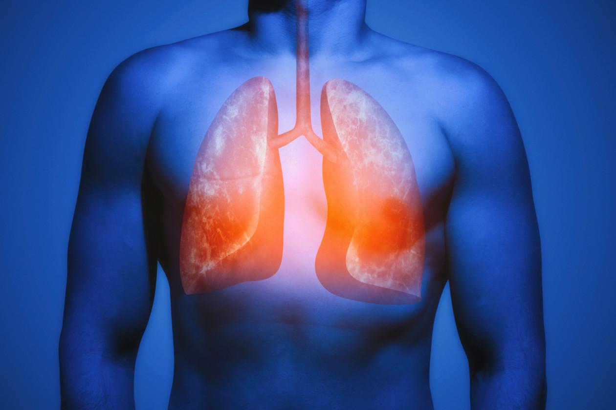 Nature Communications: Dhiraj Kumar latest study on overcoming major hurdles in tuberculosis control
